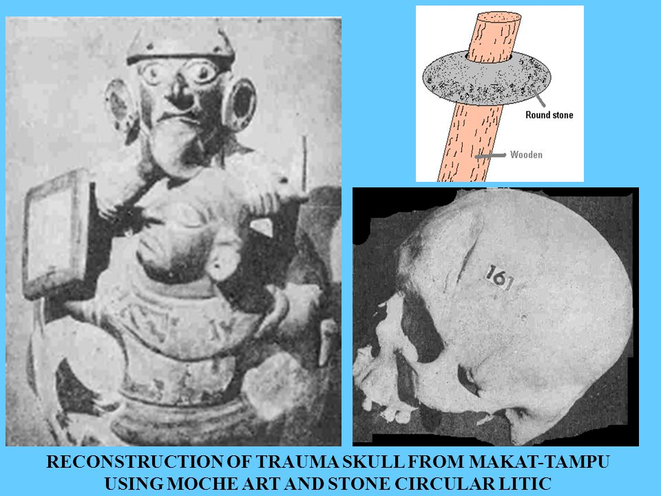 RECONSTRUCTION OF TRAUMA SKULL FROM MAKAT-TAMPU USING MOCHE ART AND STONE CIRCULAR LITIC