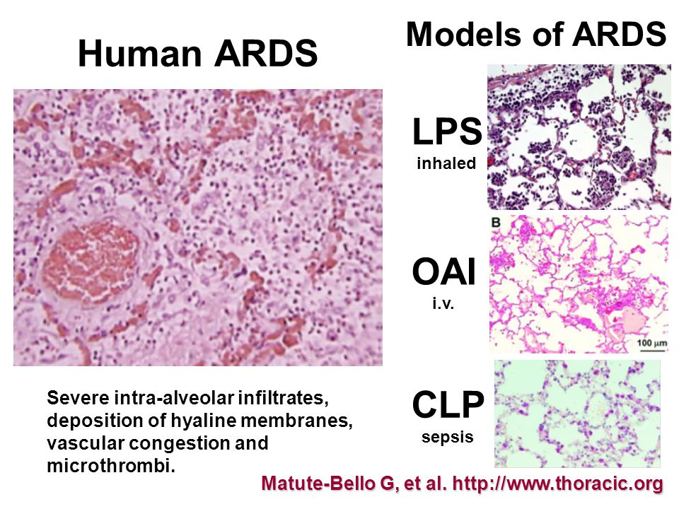 Severe intra-alveolar infiltrates, deposition of hyaline membranes, vascular congestion and microthrombi.