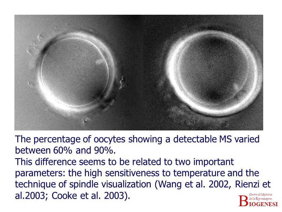 IOGENESI Centro di Medicina della Riproduzione B The percentage of oocytes showing a detectable MS varied between 60% and 90%.