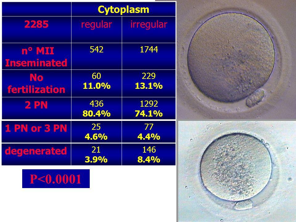 IOGENESI Centro di Medicina della Riproduzione B P<0.0001 1 PN or 3 PN 25 4.6% 77 4.4% degenerated 21 3.9% 146 8.4% Cytoplasm 2285regularirregular n° MII Inseminated 5421744 No fertilization 60 11.0% 229 13.1% 2 PN 436 80.4% 1292 74.1%