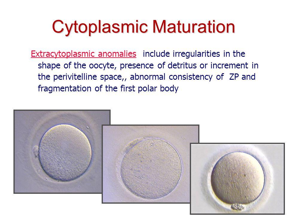 IOGENESI Centro di Medicina della Riproduzione B Cytoplasmic Maturation Extracytoplasmic anomalies: include irregularities in the shape of the oocyte,