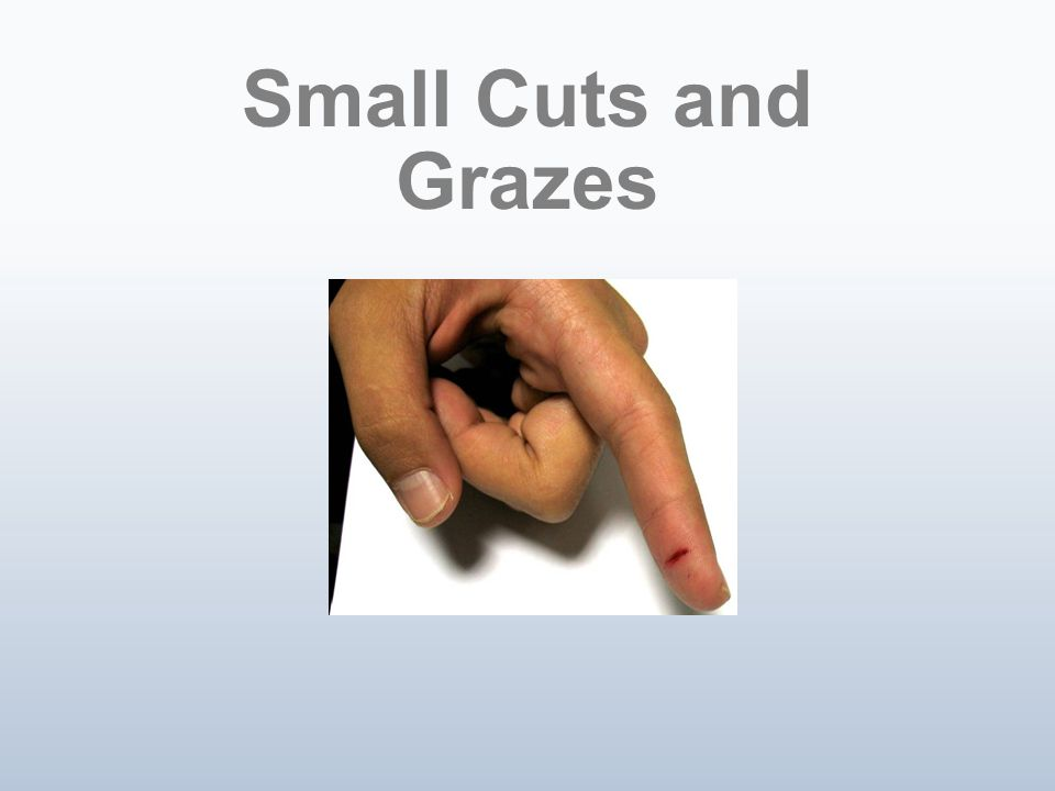 Small Cuts and Grazes