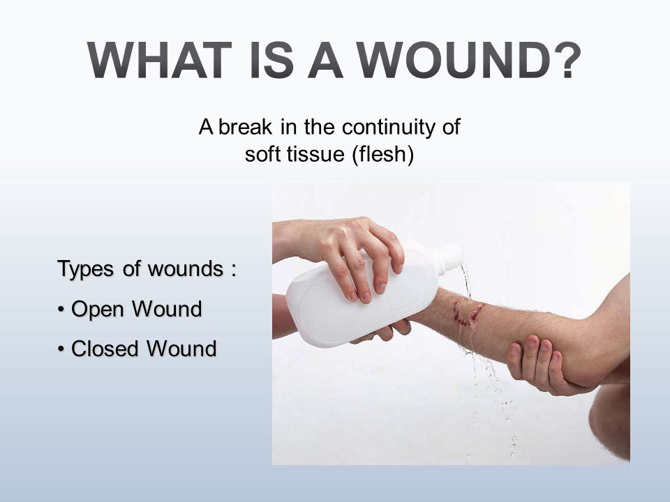 Types of wounds : Open Wound Open Wound Closed Wound Closed Wound A break in the continuity of soft tissue (flesh)