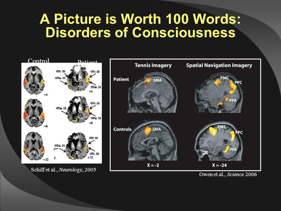 Patient Schiff et al., Neurology, 2005 Control Owen et al., Science 2006 A Picture is Worth 100 Words: Disorders of Consciousness