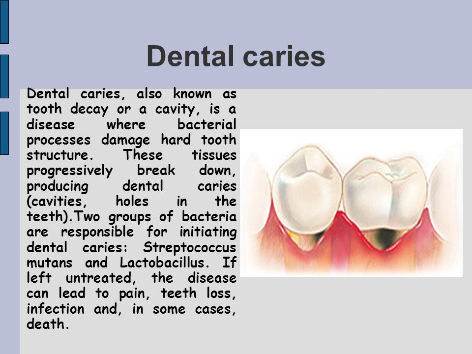 Dental caries Dental caries, also known as tooth decay or a cavity, is a disease where bacterial processes damage hard tooth structure.