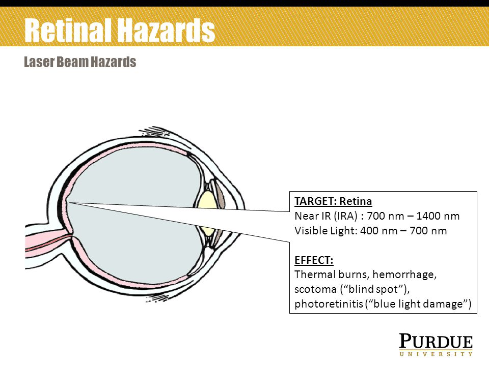 TARGET: Retina Near IR (IRA) : 700 nm – 1400 nm Visible Light: 400 nm – 700 nm EFFECT: Thermal burns, hemorrhage, scotoma ( blind spot ), photoretinitis ( blue light damage ) Laser Beam Hazards Retinal Hazards
