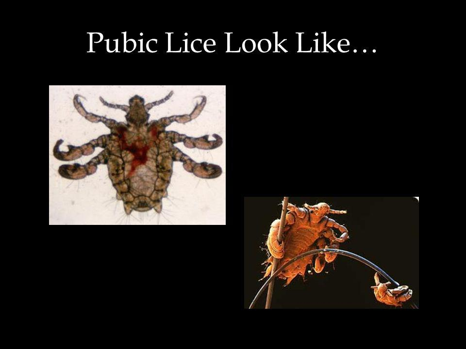 Symptoms of Pubic Lice Itching in the genital area or anus-- depending on the area of contact--begins about 5 days after infestation May be able to se