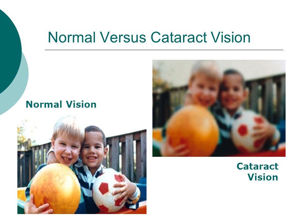 Normal Versus Cataract Vision Normal Vision Cataract Vision