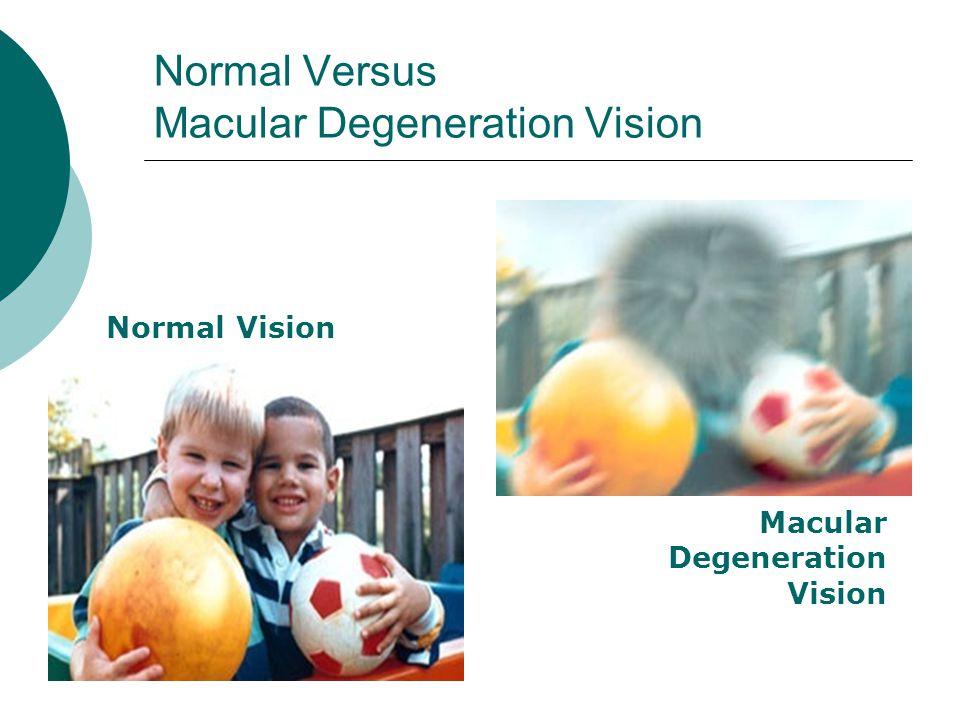 Normal Versus Macular Degeneration Vision Normal Vision Macular Degeneration Vision