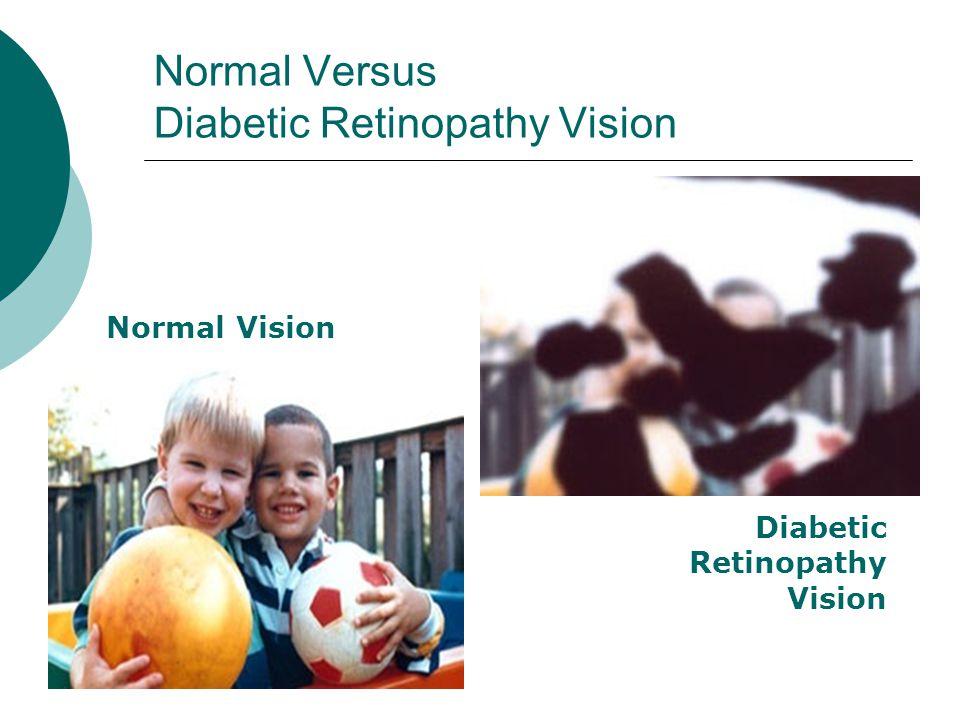 Normal Versus Diabetic Retinopathy Vision Normal Vision Diabetic Retinopathy Vision