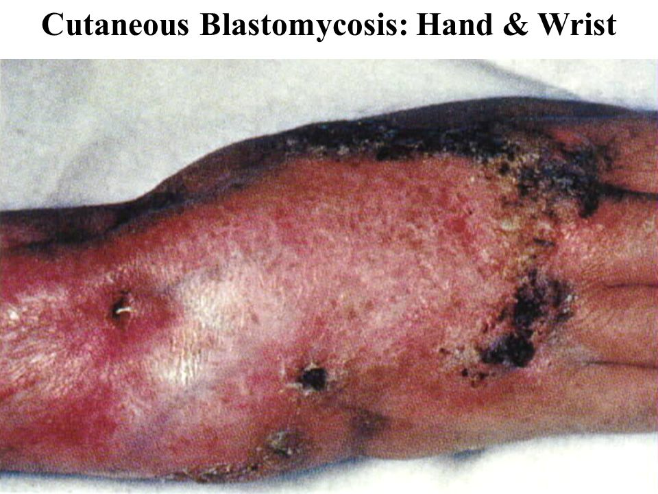 Cutaneous Fungal Infection: Ringworm