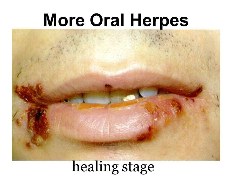 Herpes Type I: Oral Herpes
