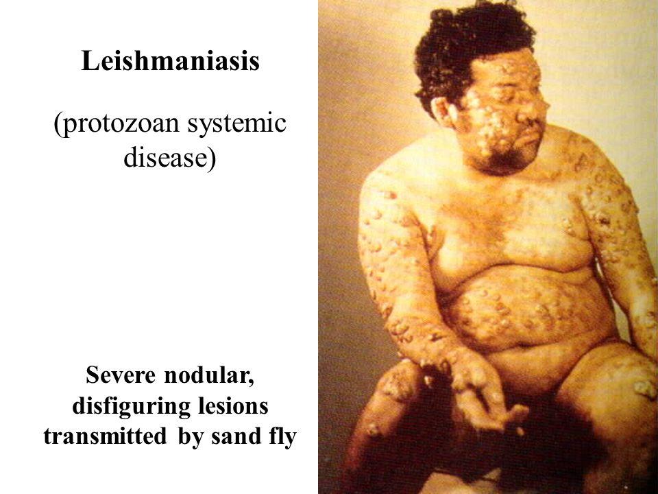 Parasitic & Protozoan Infections