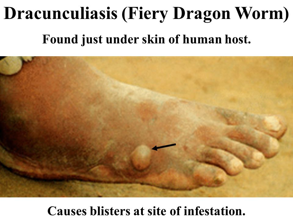 Leishmaniasis (protozoan systemic disease) Severe nodular, disfiguring lesions transmitted by sand fly