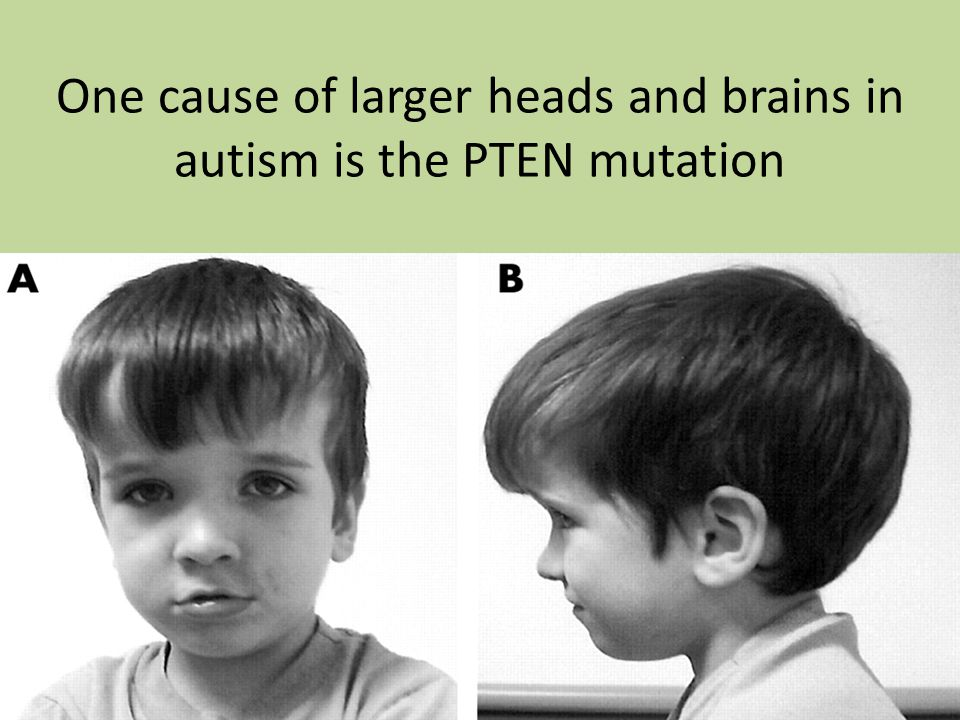 One cause of larger heads and brains in autism is the PTEN mutation