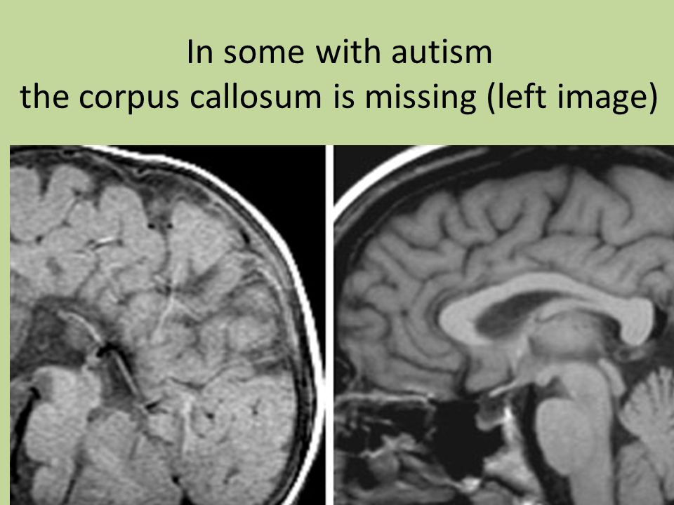 In some with autism the corpus callosum is missing (left image)