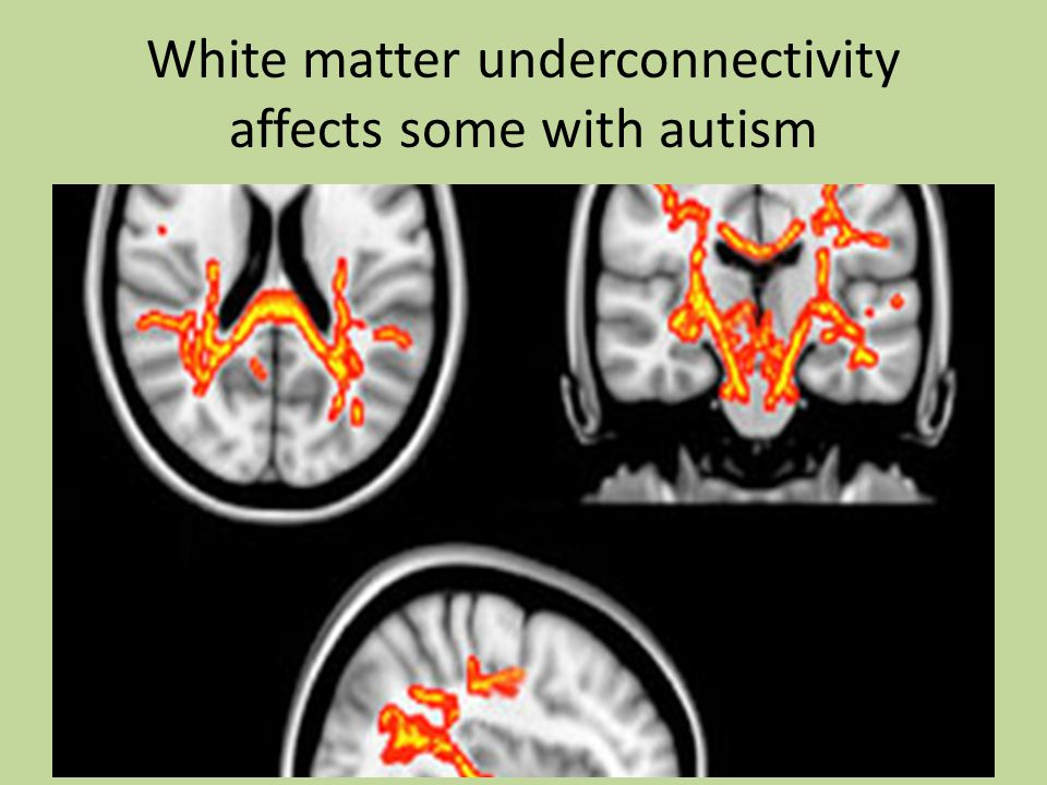 White matter underconnectivity affects some with autism