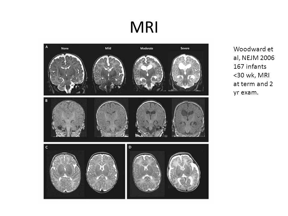 MRI Woodward et al, NEJM 2006 167 infants <30 wk, MRI at term and 2 yr exam.