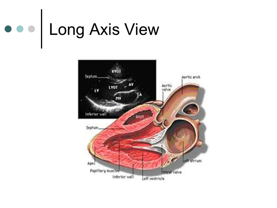 Long Axis View