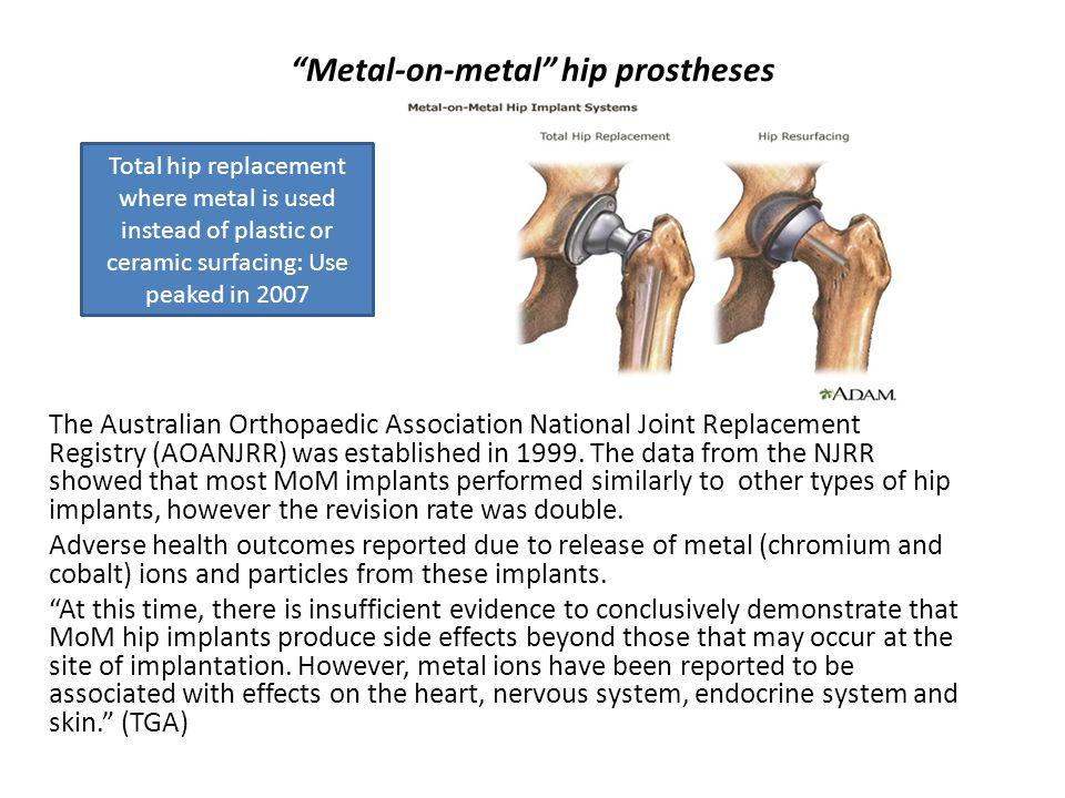 Metal-on-metal hip prostheses The Australian Orthopaedic Association National Joint Replacement Registry (AOANJRR) was established in 1999.