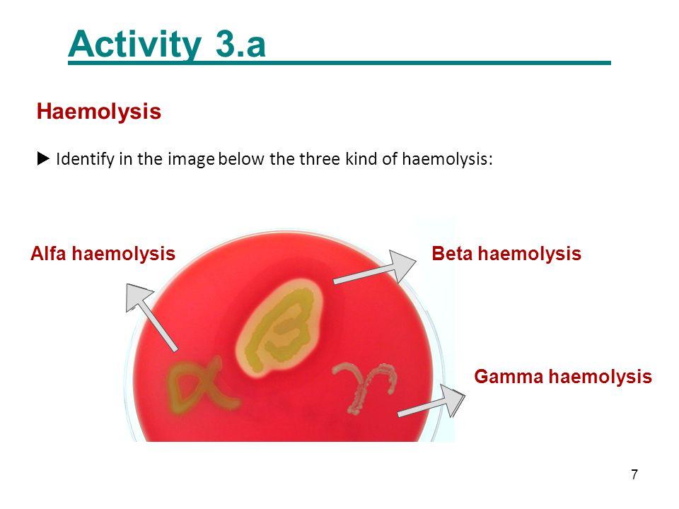 7  Identify in the image below the three kind of haemolysis: Gamma haemolysis Alfa haemolysisBeta haemolysis Activity 3.a