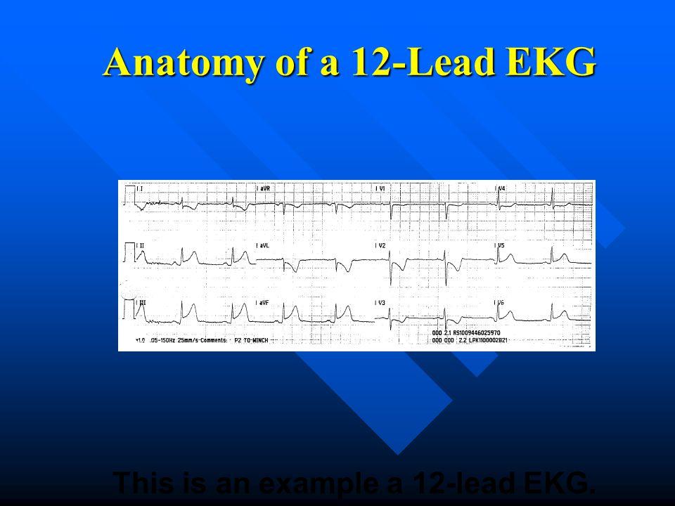 This is an example a 12-lead EKG. Anatomy of a 12-Lead EKG