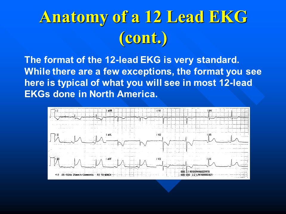 The format of the 12-lead EKG is very standard. While there are a few exceptions, the format you see here is typical of what you will see in most 12-l
