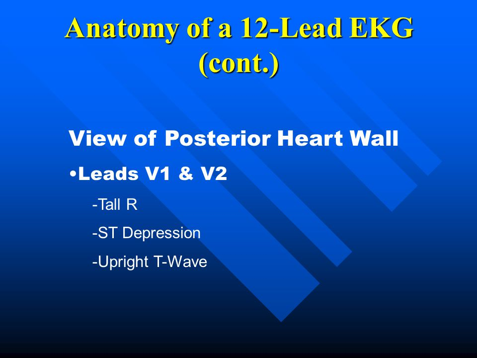 Anatomy of a 12-Lead EKG (cont.) View of Posterior Heart Wall Leads V1 & V2 -Tall R -ST Depression -Upright T-Wave