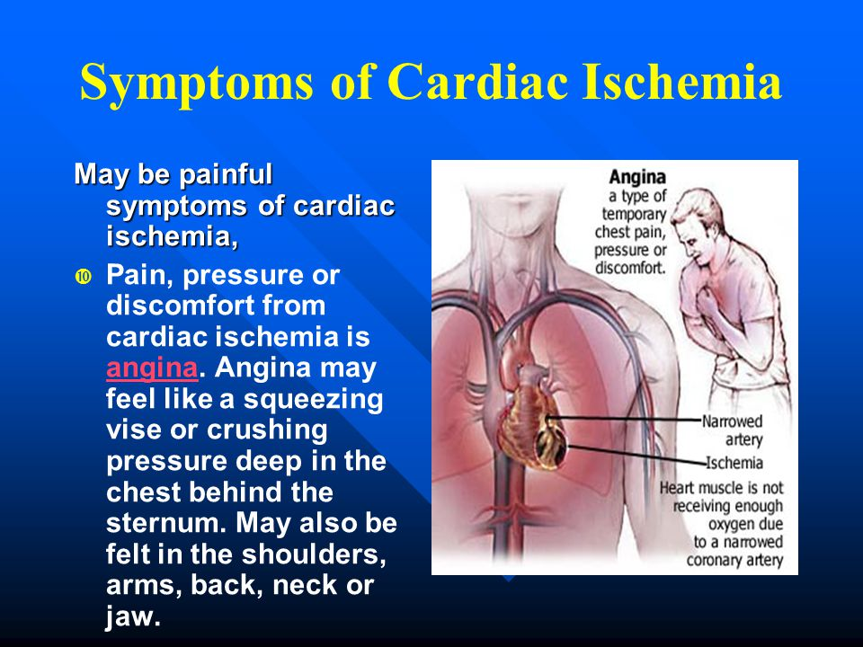Symptoms of Cardiac Ischemia May be painful symptoms of cardiac ischemia,   Pain, pressure or discomfort from cardiac ischemia is angina. Angina may