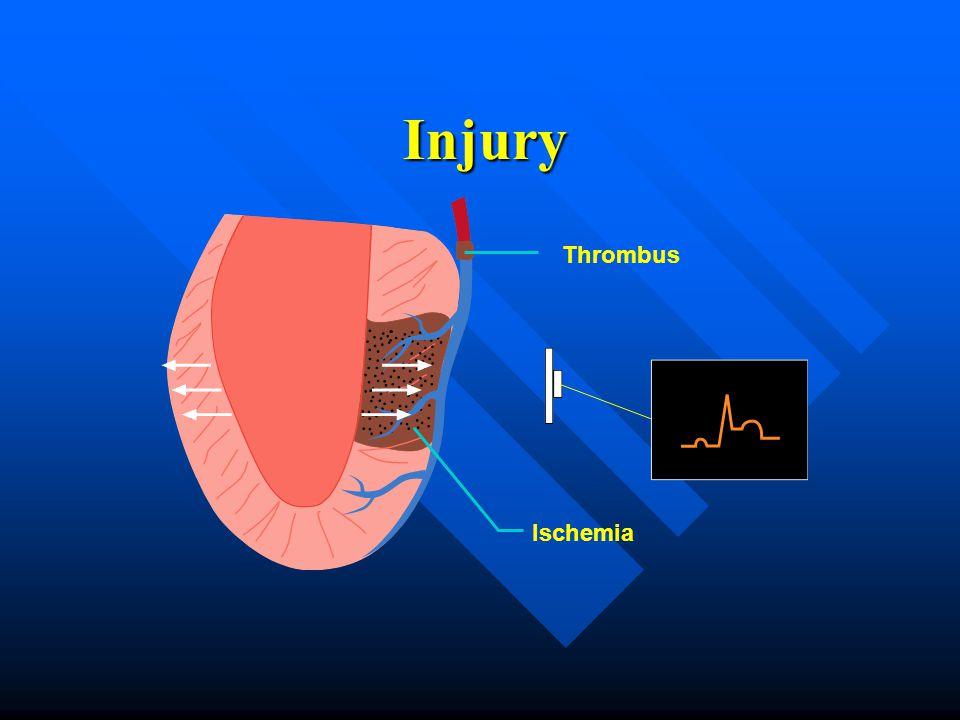 Thrombus Ischemia Injury