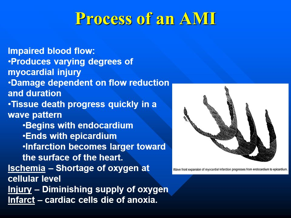 Process of an AMI Impaired blood flow: Produces varying degrees of myocardial injury Damage dependent on flow reduction and duration Tissue death prog