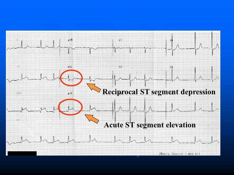 Acute ST segment elevation Reciprocal ST segment depression