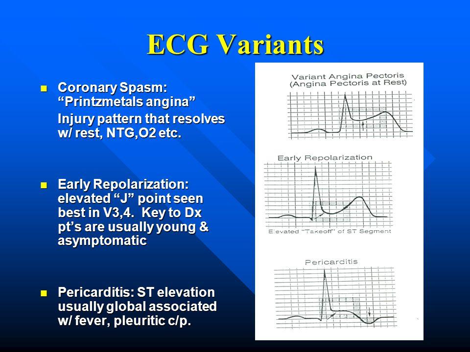 "ECG Variants Coronary Spasm: ""Printzmetals angina"" Coronary Spasm: ""Printzmetals angina"" Injury pattern that resolves w/ rest, NTG,O2 etc. Early Repol"