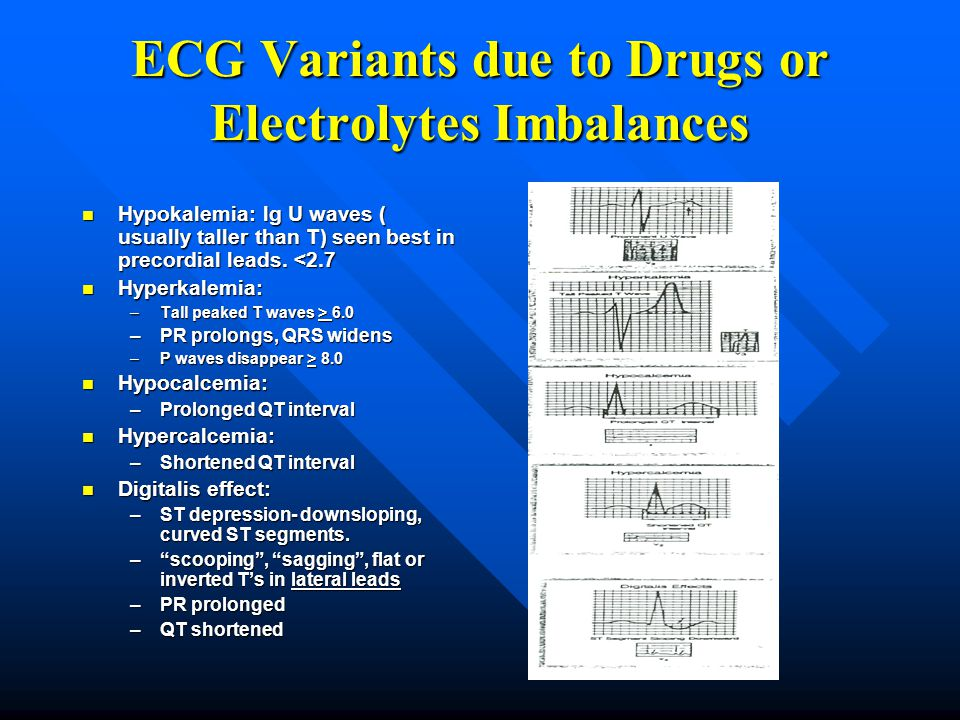 ECG Variants due to Drugs or Electrolytes Imbalances Hypokalemia: lg U waves ( usually taller than T) seen best in precordial leads. <2.7 Hypokalemia: