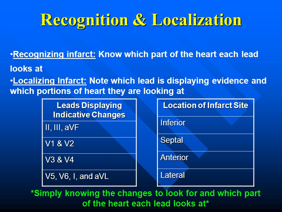 Recognizing infarct: Know which part of the heart each lead looks at Localizing Infarct: Note which lead is displaying evidence and which portions of