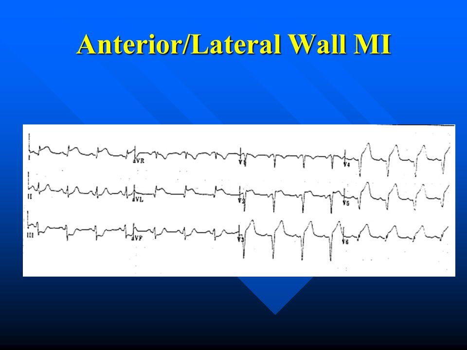 Anterior/Lateral Wall MI