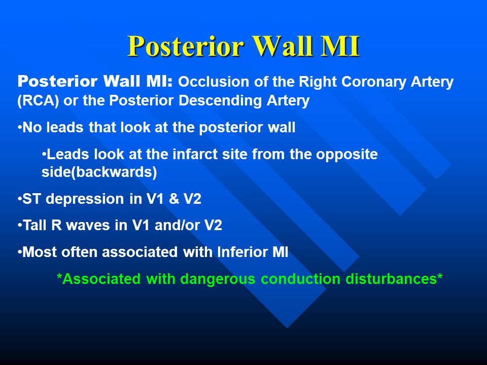 Posterior Wall MI Posterior Wall MI: Occlusion of the Right Coronary Artery (RCA) or the Posterior Descending Artery No leads that look at the posteri