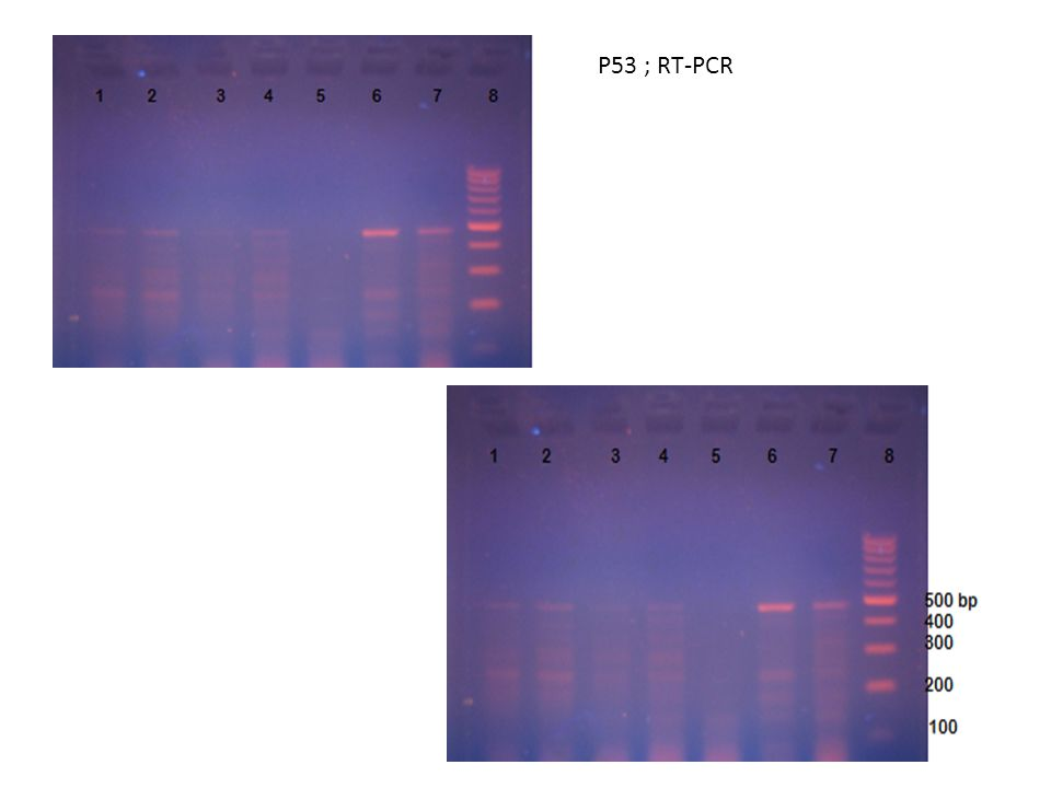 P53 ; RT-PCR