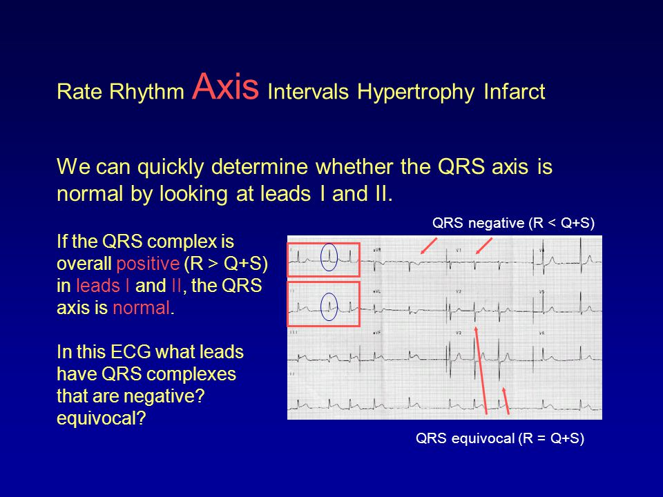 Rate Rhythm Axis Intervals Hypertrophy Infarct We can quickly determine whether the QRS axis is normal by looking at leads I and II. If the QRS comple