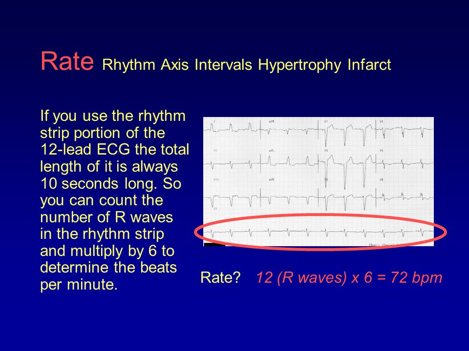 Rate Rhythm Axis Intervals Hypertrophy Infarct If you use the rhythm strip portion of the 12-lead ECG the total length of it is always 10 seconds long