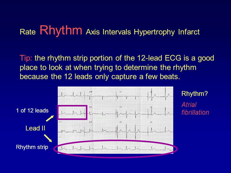 Rate Rhythm Axis Intervals Hypertrophy Infarct Tip: the rhythm strip portion of the 12-lead ECG is a good place to look at when trying to determine th