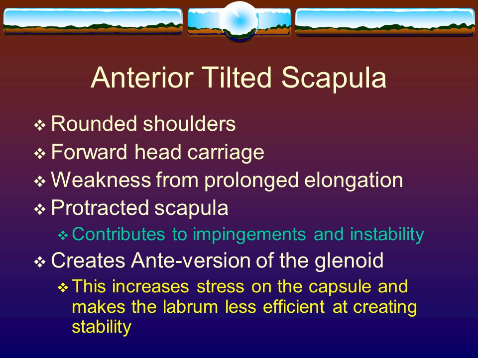 Anterior Tilted Scapula  Rounded shoulders  Forward head carriage  Weakness from prolonged elongation  Protracted scapula  Contributes to impinge