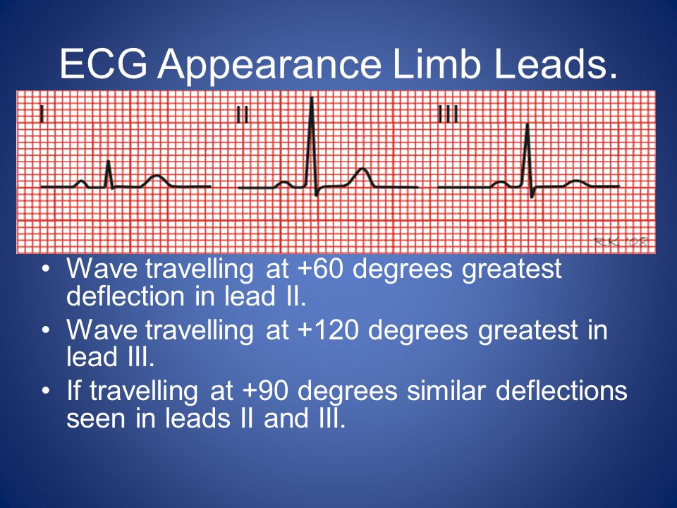 Recording.Relaxed. Comfortable – supine. 12 lead ECG.