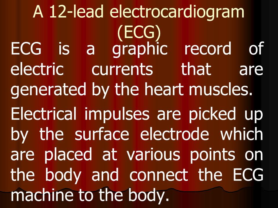 A 12-lead electrocardiogram (ECG) ECG is a graphic record of electric currents that are generated by the heart muscles. Electrical impulses are picked