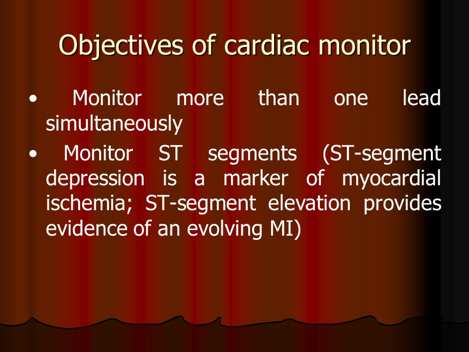 Objectives of cardiac monitor Monitor more than one lead simultaneously Monitor ST segments (ST-segment depression is a marker of myocardial ischemia;