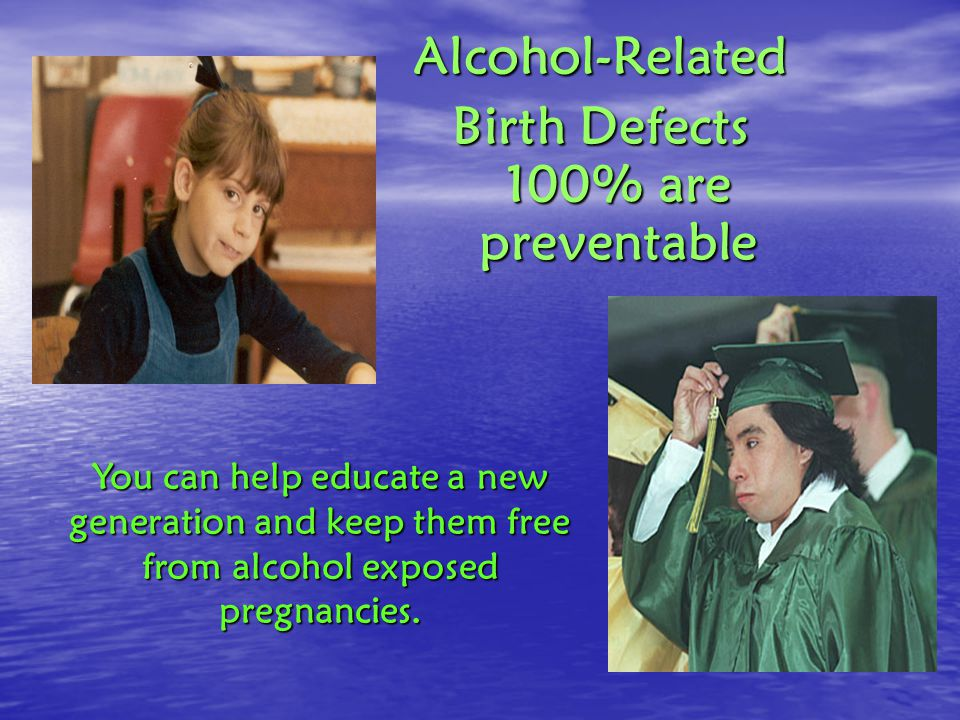 Alcohol-Related Birth Defects 100% are preventable You can help educate a new generation and keep them free from alcohol exposed pregnancies.