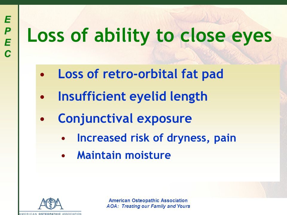 EPECEPECEPECEPEC American Osteopathic Association AOA: Treating our Family and Yours Loss of ability to close eyes Loss of retro-orbital fat pad Insufficient eyelid length Conjunctival exposure Increased risk of dryness, pain Maintain moisture