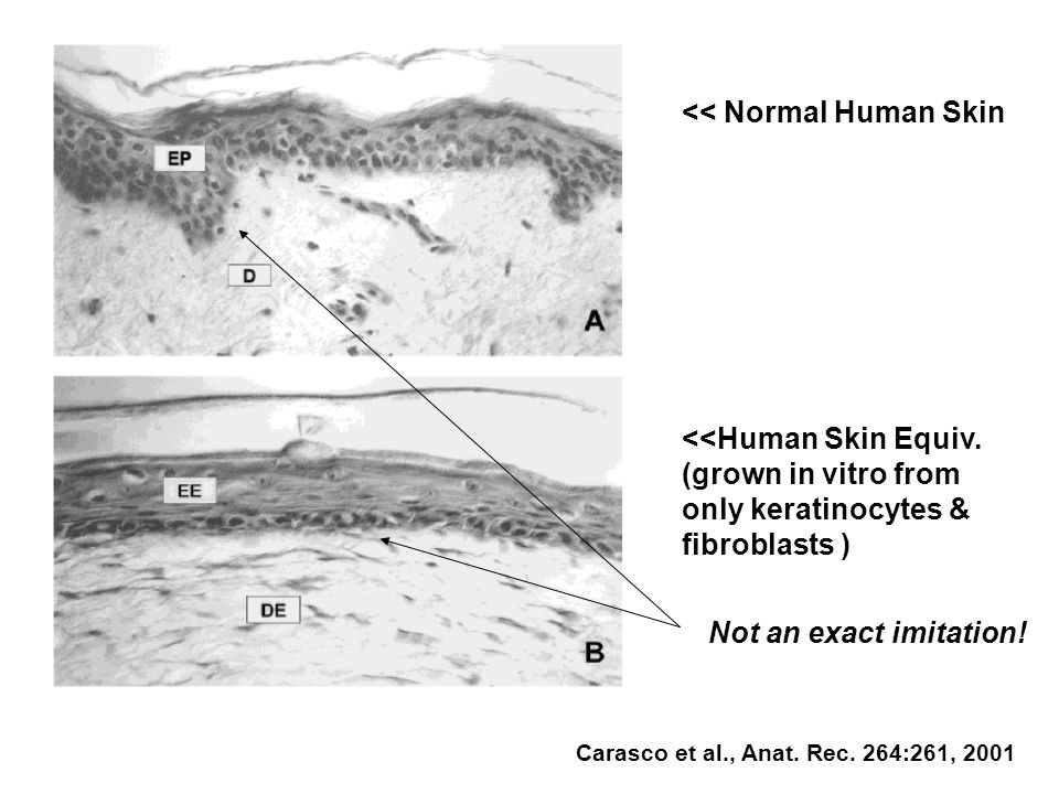 << Normal Human Skin <<Human Skin Equiv.