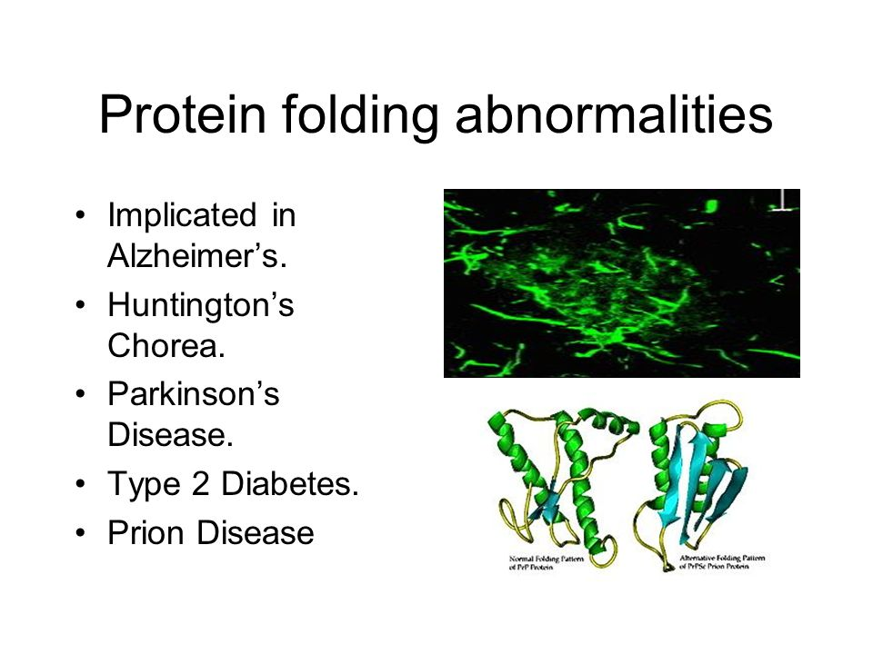 Protein folding abnormalities Implicated in Alzheimer's.