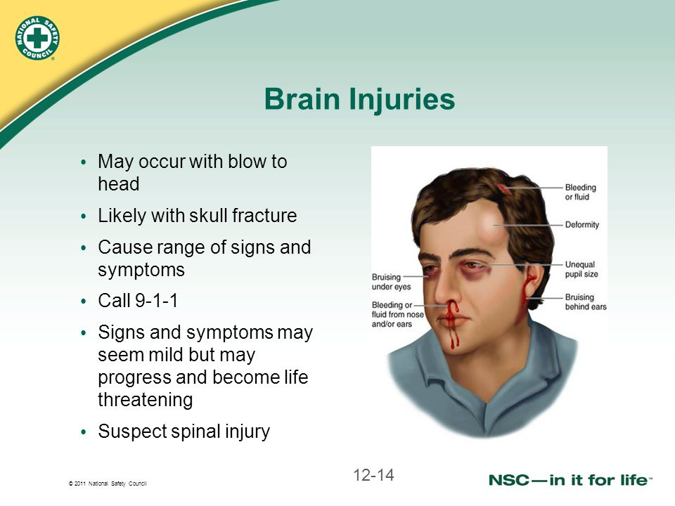 © 2011 National Safety Council Brain Injuries May occur with blow to head Likely with skull fracture Cause range of signs and symptoms Call 9-1-1 Sign